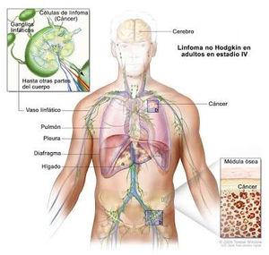cancer de hodgkin tem cura
