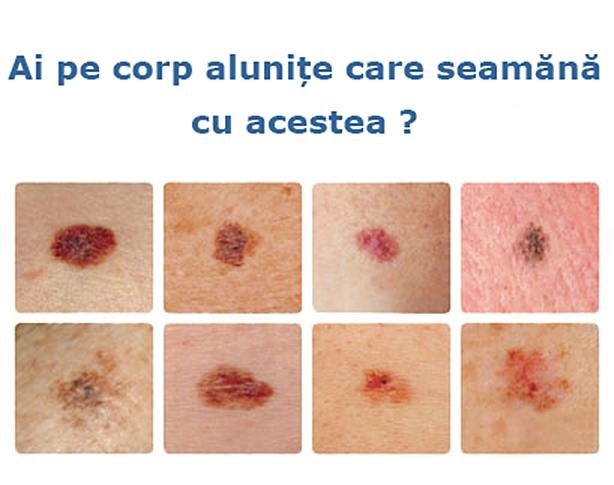 cancer de piele mancarimi