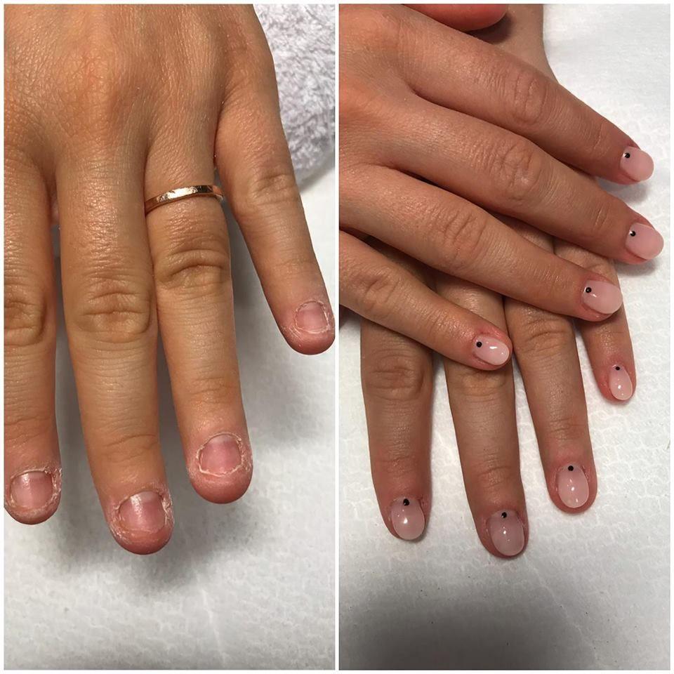 cancer de piele unghie)