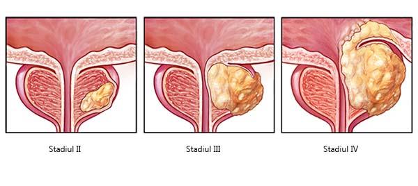 cancer de vezica urinara recidiva)