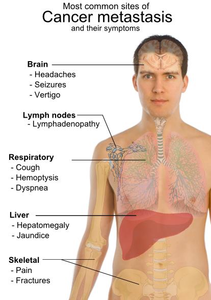 cancer la plamani metastaza)