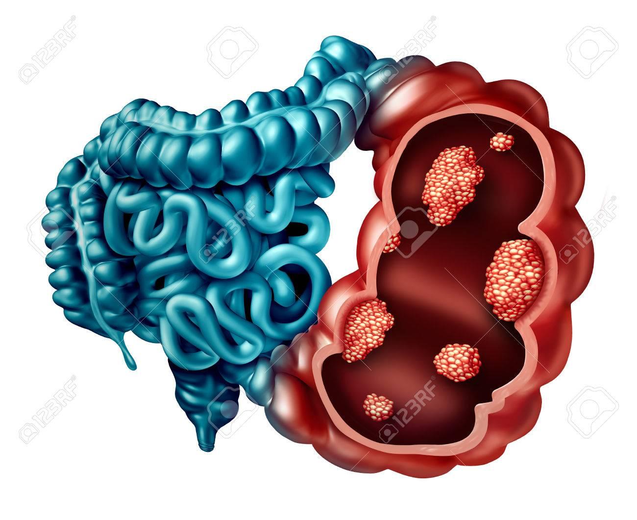 cancer maligne intestin