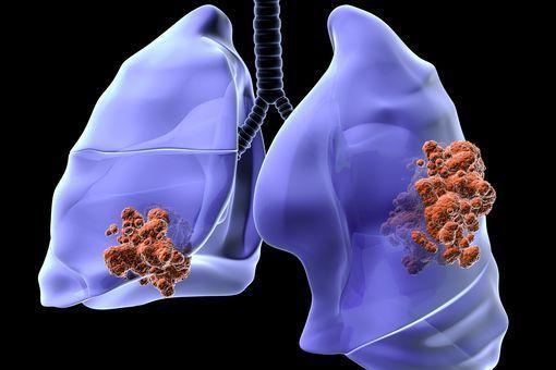cancer poumon maligne cancerul de planseu bucal tratament