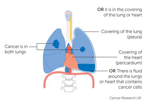 cancer pulmonar 3 b)