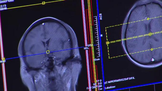 cancer pulmonar metastaze cerebrale