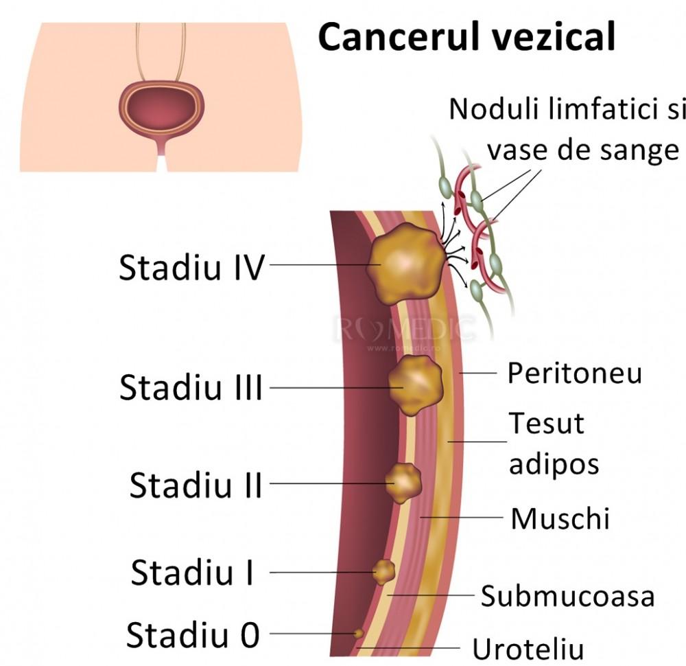 Cancerul vezical: cauze, simptome și tratament