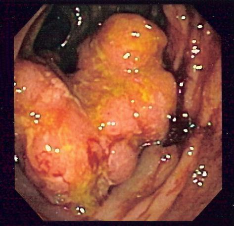 cancerul de colon ereditar)
