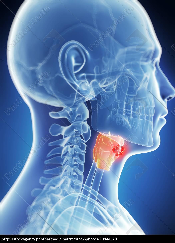 Cancerul faringian – Simptome si metode de tratament