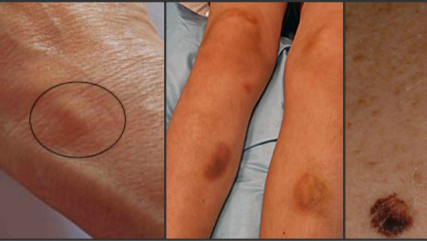 cancerul de piele doare