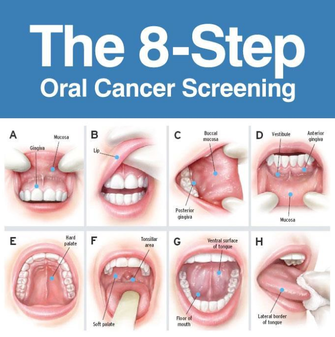 cancerul la gura)