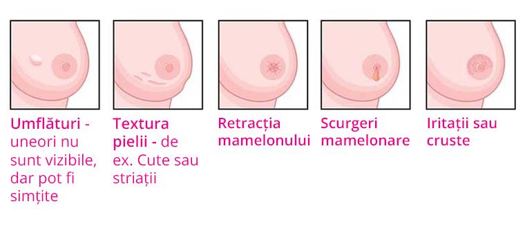 cancerul la san simptome
