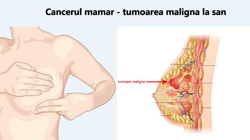 Cancerul de san: Simptome, Factori de risc, Tratament