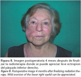 cancerul maxilo-facial)