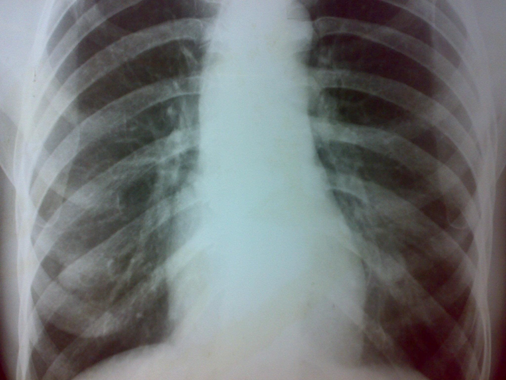 cancerul pulmonar si antibioticele