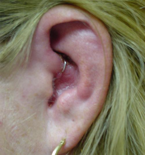 hpv in ear