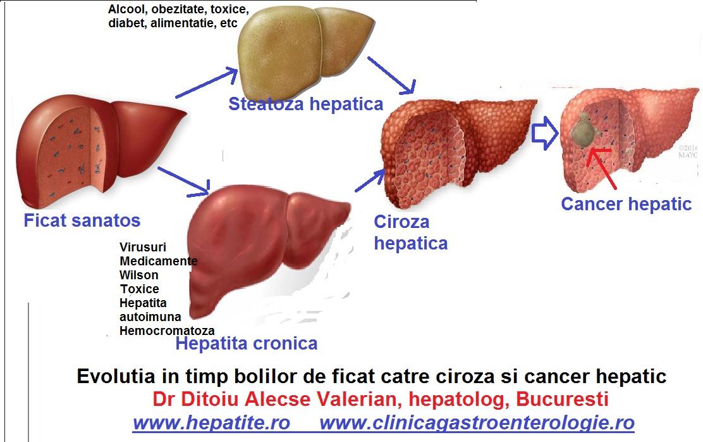 cancer la ficat regim alimentar