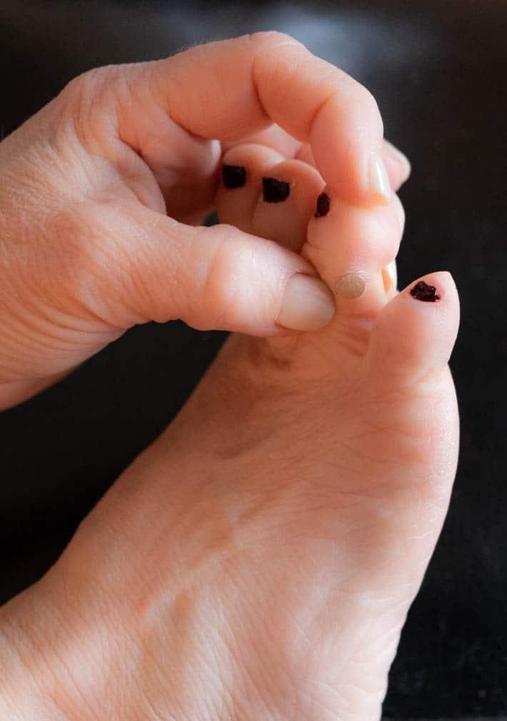 wart on foot sore)