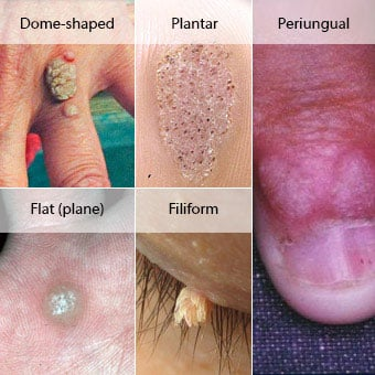 are warts on skin contagious