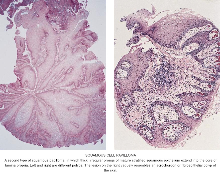 squamous papilloma of esophagus icd 10)