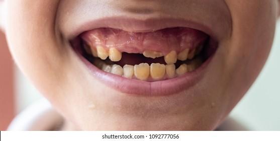 papillomas teeth