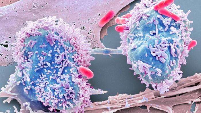 colon cancer intestinal bacteria)