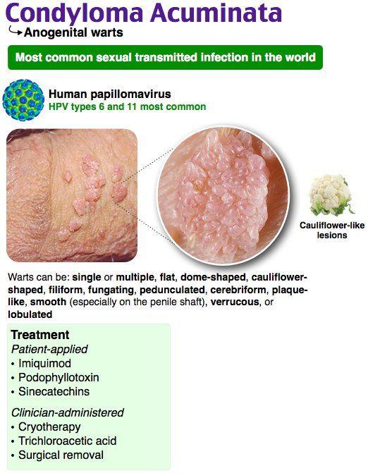 Tot ce trebuie să ştiţi despre HPV. Doar o femeie din trei riscă să dezvolte Gel Papillor   Click