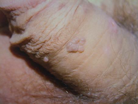 condyloma acuminatum kezeles)