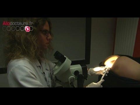 pancreatic cancer young age tratament pentru cancerul bucal