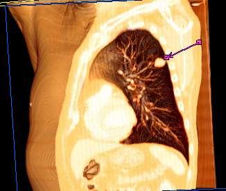 cancer pulmonar analize