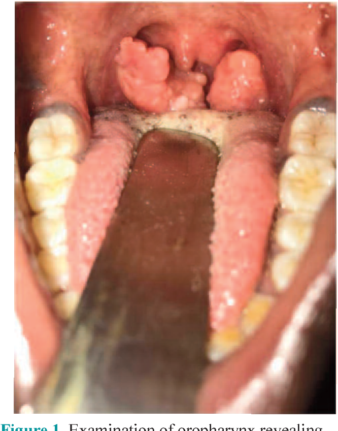 papilloma tonsil area