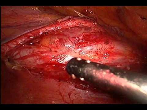 ovarian cancer laparoscopy)
