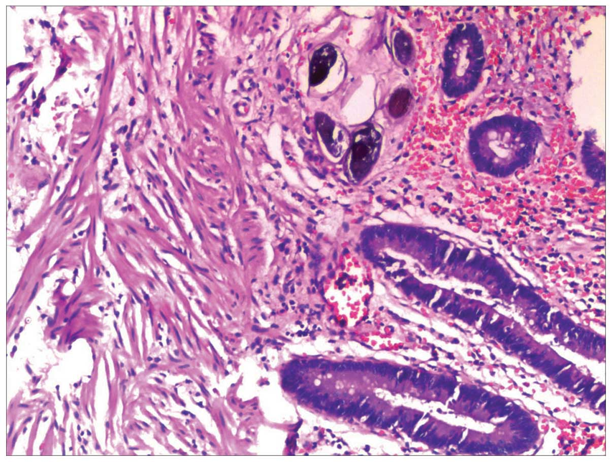 schistosomiasis rectal biopsy
