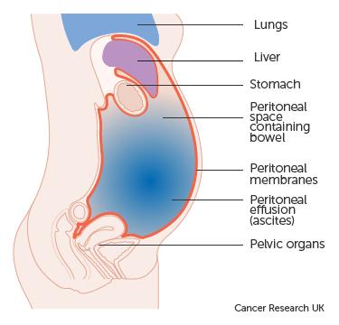 peritoneal cancer fluid drainage