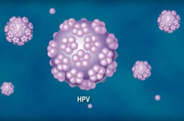 papillomavirus homme amygdale)