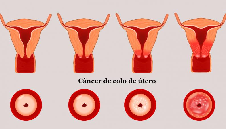 hpv e o cancer do colo do utero)