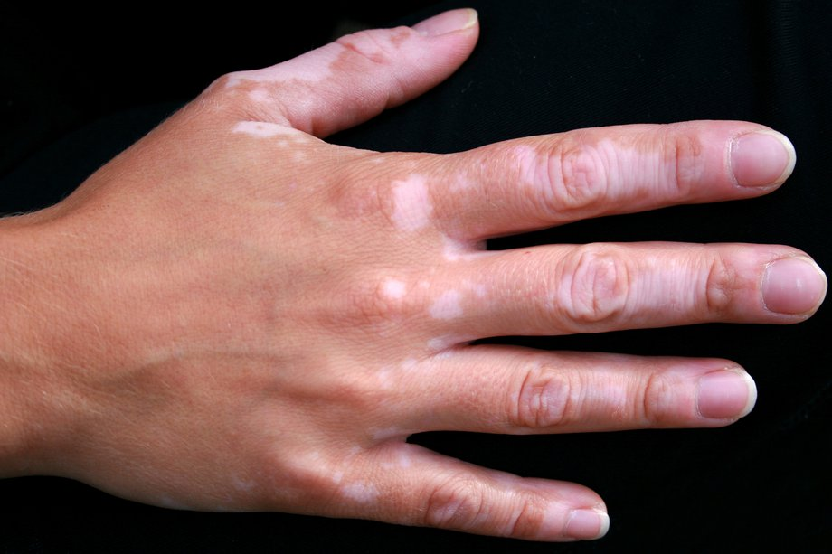 warts on hands in summer)