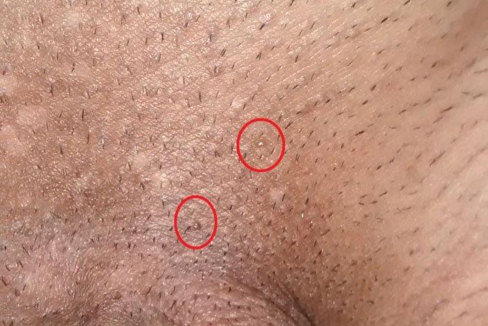 Infecţia cu stafilococ auriu: simptome, mod de transmitere, cauze, tratament