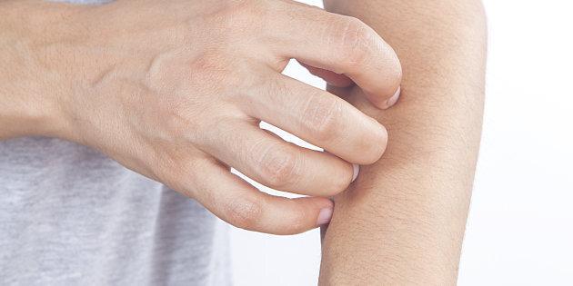 dermatite atopica cura dermatita seboreica