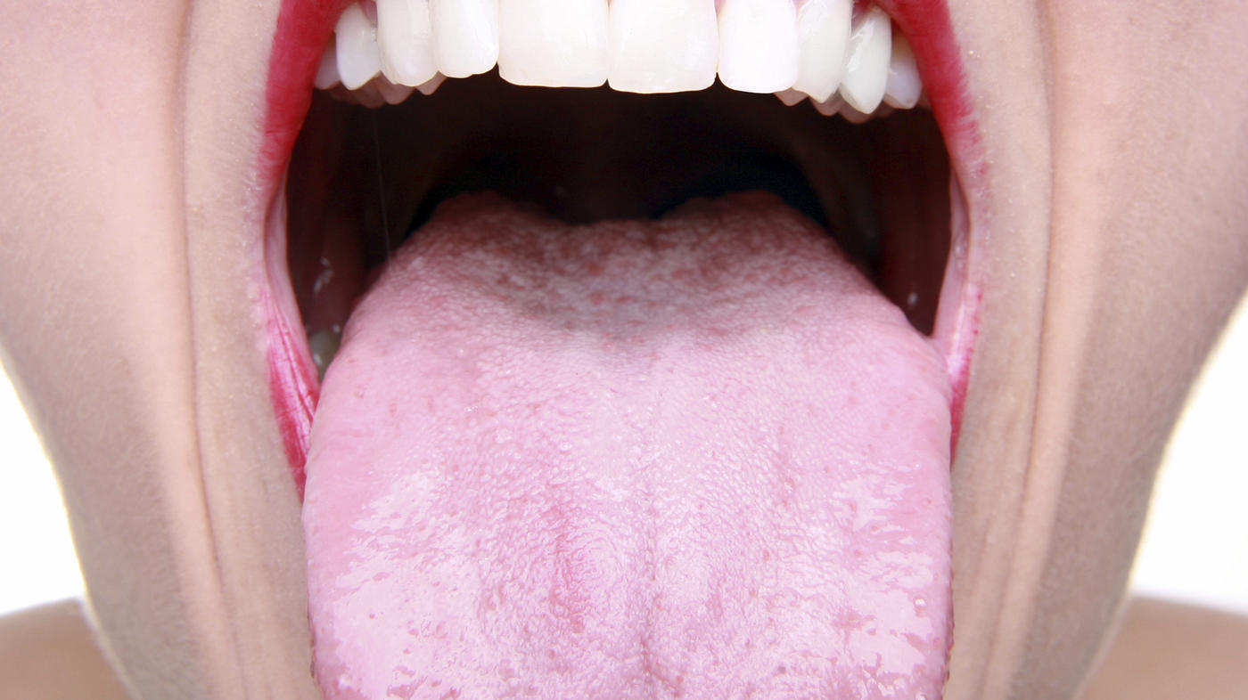 does hpv cause tongue cancer)