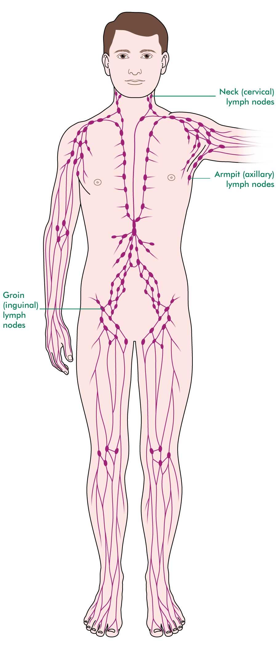 metastatic cancer lymph nodes symptoms