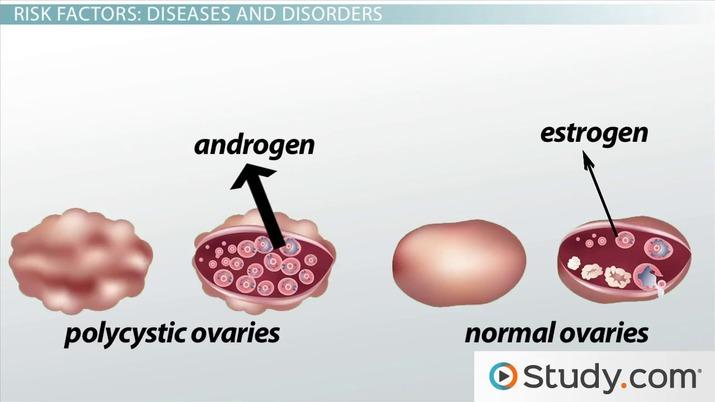 Cancer endometrial - Wikipedia