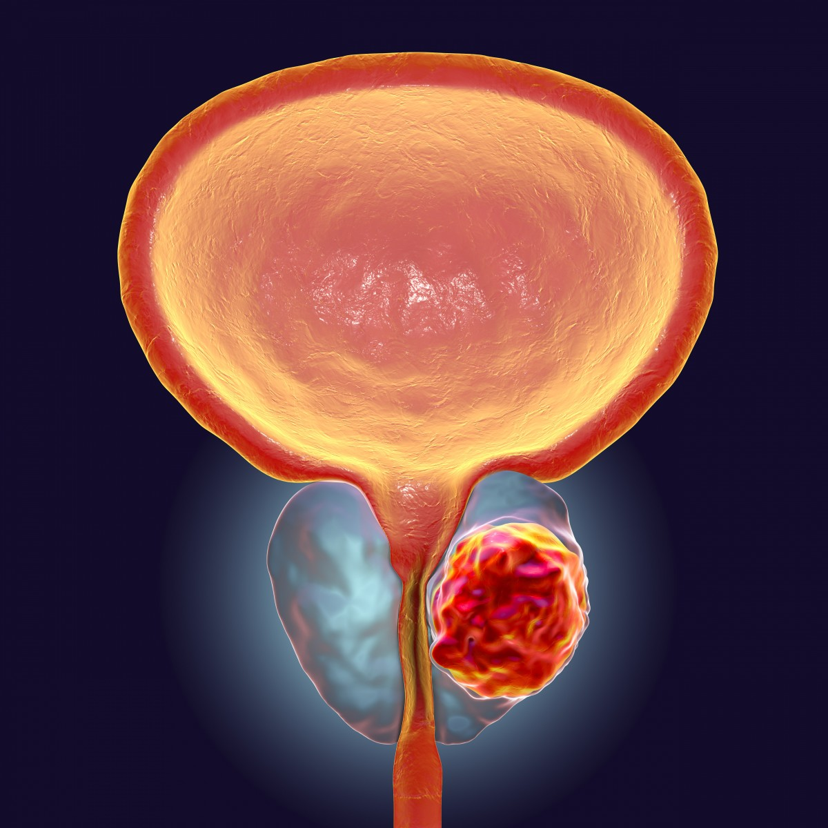is there a link between hpv and prostate cancer
