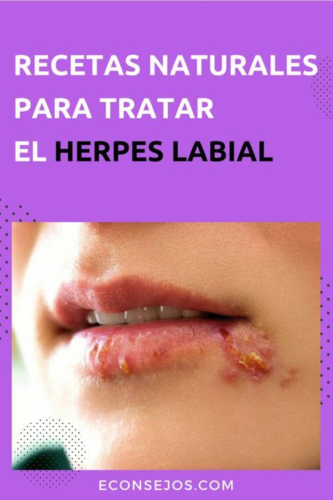 papiloma y herpes labial