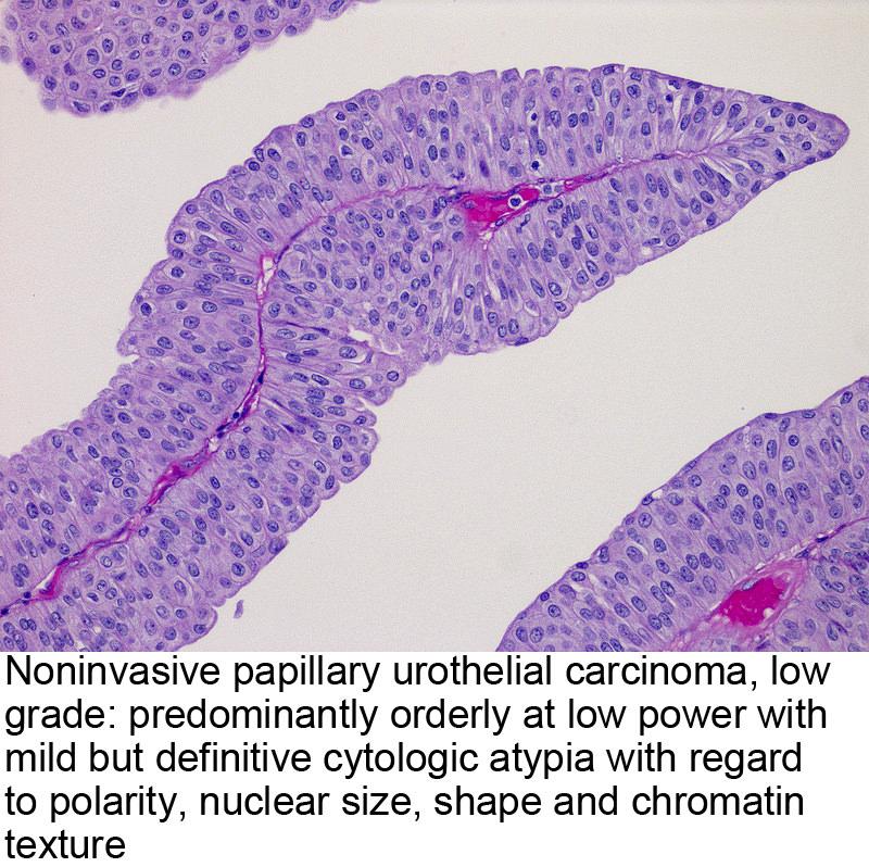 papillary urothelial carcinoma ureter