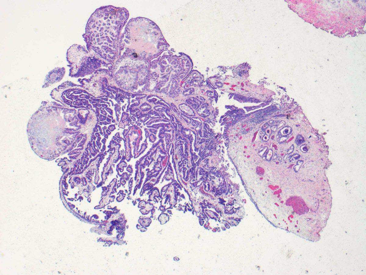 papillary lesion prostate cancer colorectal cauze