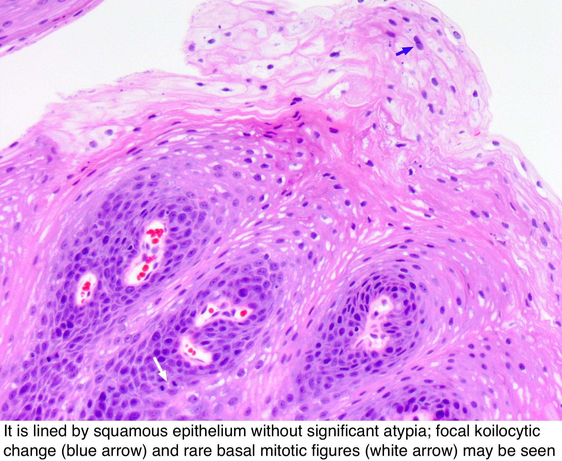 squamous papilloma with mild atypia)