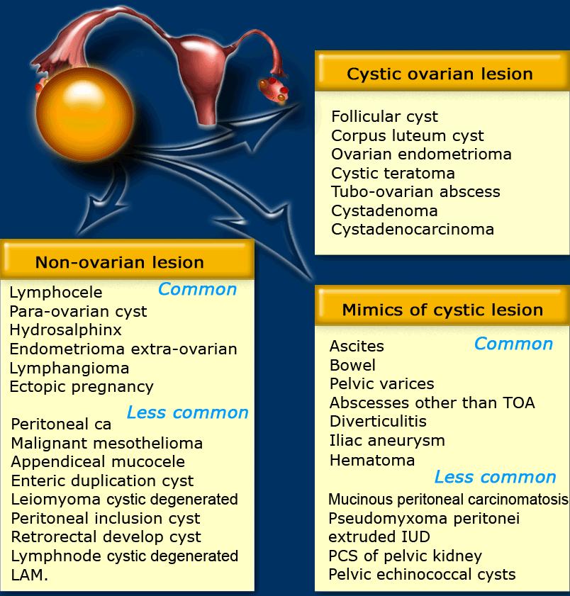 ovarian cancer usmle)