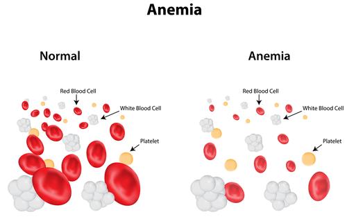 anemie tratament rapid