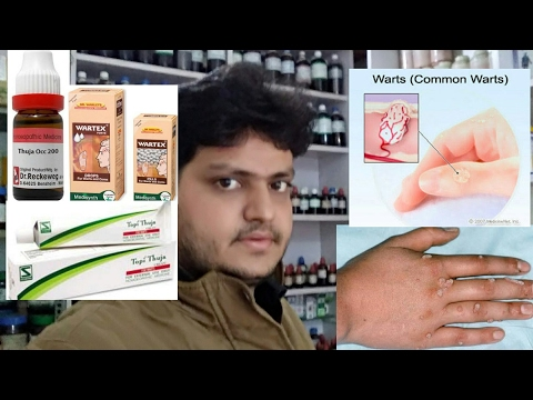 tratament homeopathic papilloma)