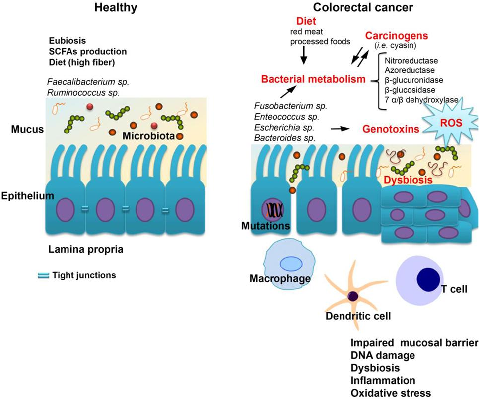 papillary urothelial carcinoma description flatulenta excesiva tratament